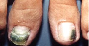 Tratamento de Podologia